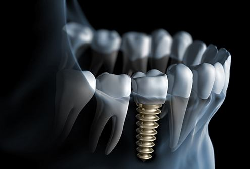 Illustration of dental implant placed in the jaw