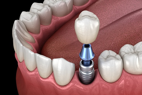 Dental implant, abutment, and crown in mouth