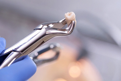 A dental professional using pliers to hold an extracted tooth