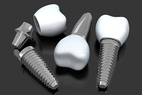 Three animated implant supported replacement teeth